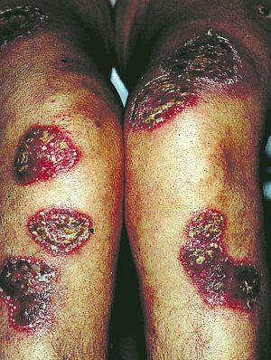 Podstawowe choroby